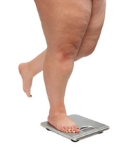 Obesity and Plantar Fasciitis