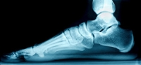 Can Flat Feet Cause Pain?
