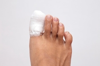 Diagnosing and Treating a Broken Toe